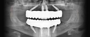 mehes_fogaszat_szajsebeszet_All_on_4_dental_implants_2