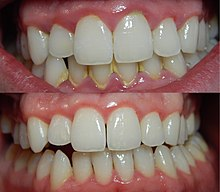 220px-Gingivitis-before-and-after-3
